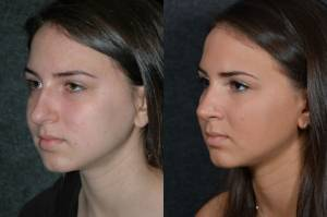 Teenage Girl Before and After Rhinoplasty, Beverly Hills CA