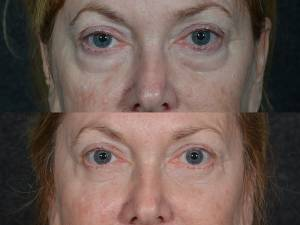 Eyelid Lift Doctor in Beverly Hills CA
