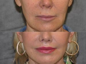 Beverly Hills CA Plastic Surgeon for Lip Enhancement
