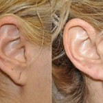 Beverly Hills CA Plastic Surgeon for Ears