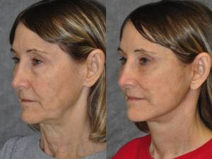 Beverly Hills CA Deep Plane Facelift Doctors