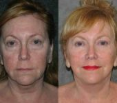 woman before and after Facelift Surgery in Beverly Hills CA