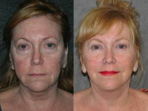 Beverly Hills CA Facelift Surgeon