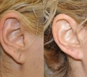 Ear before and after torn earlobe repair by Plastic Surgeon for Ears in Beverly Hills CA