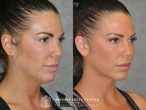 Cheek Enhancement & Neck MicroLiposuction - Right Side