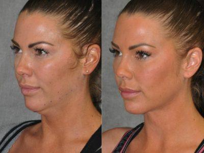 Cheek Enhancement & Neck MicroLiposuction - Left Side