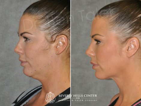 Cheek Enhancement & Neck MicroLiposuction - Left Side