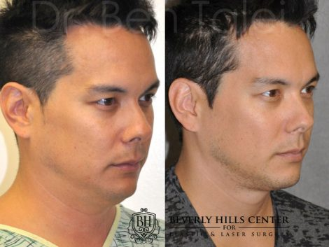 MicroLiposuction of the Neck and Chin – Right Side