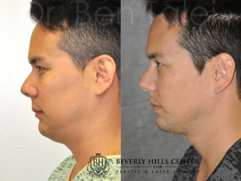 MicroLiposuction of the Neck and Chin – Left Side