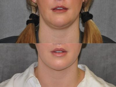 Neck and Chin MicroLiposuction - Front