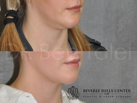 Neck and Chin MicroLiposuction - Right Side
