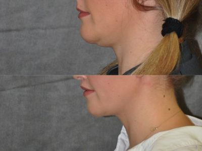Neck and Chin MicroLiposuction - Left Side