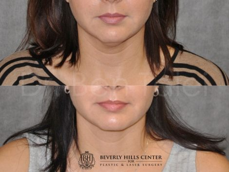 MicroLiposuction of the Neck and Chin - Front