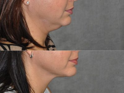 MicroLiposuction of the Neck and Chin - Right Side