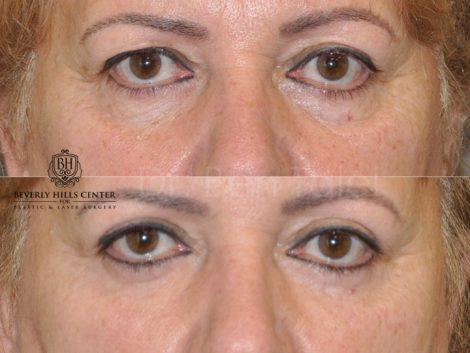 Upper Eyelid Lift - Front