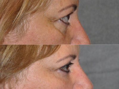 Upper Eyelid Lift - Right Side