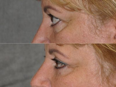 Upper Eyelid Lift - Left Side