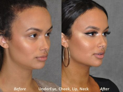 Neck MicroLiposuction with subtle UnderEye Refresh, Cheek Contour, Chin Projection, and Lip Enhancement - Right Side