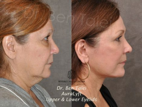 AuraLyft, Upper & Lower Eyelids –  Right Side