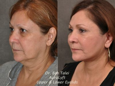 AuraLyft, Upper & Lower Eyelids –  Left Side