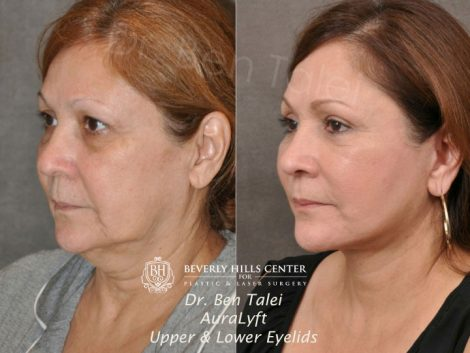 AuraLyft, Upper & Lower Eyelids