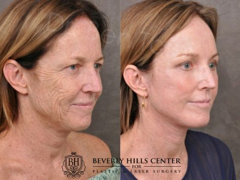 AurLyft, BrowLift, Eyelid Rejuvenation, Profound & CO2