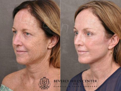 AurLyft, BrowLift, Eyelid Rejuvenation, Profound & CO2 - Left Side