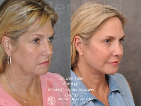 AuraLyft, BrowLift, Upper & Lower Eyelids – Right Side