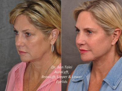 AuraLyft, BrowLift, Upper & Lower Eyelids – Left Side