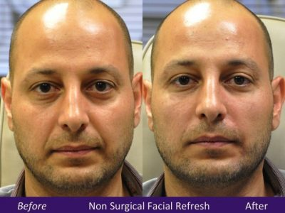 Filler Facial Refresh