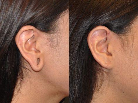 Gauge Piercing / Stretched Ear Lobe Repair