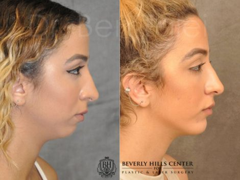 Chin Implant - Right Side