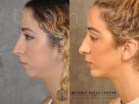 Chin Implant - Left Side