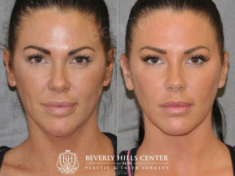 Cheek Enhancement & Neck MicroLiposuction - Front