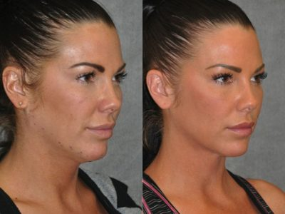 Cheek Enhancement & Neck MicroLiposuction - Right Side