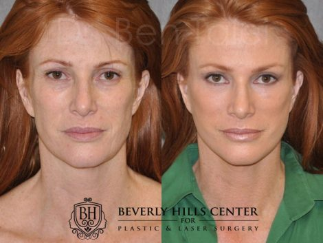 Super Model Angie Everhart – Front