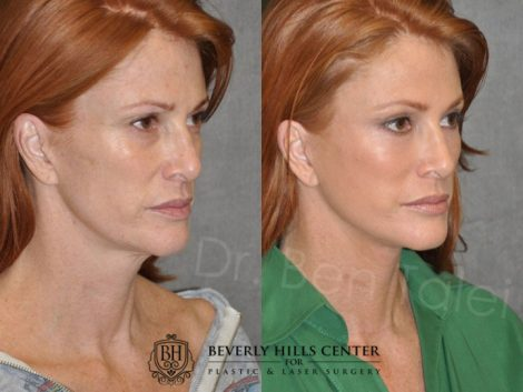 Super Model Angie Everhart - Right Side