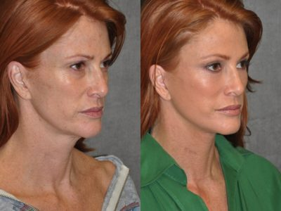 Super Model Angie Everhart – Right Side