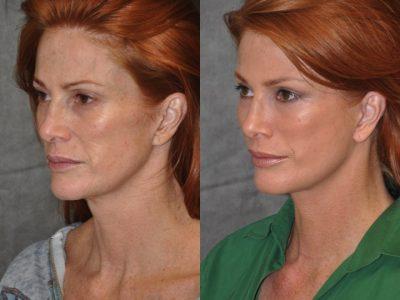 Super Model Angie Everhart - Left Side