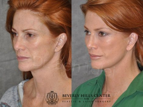 Super Model Angie Everhart – Left Side