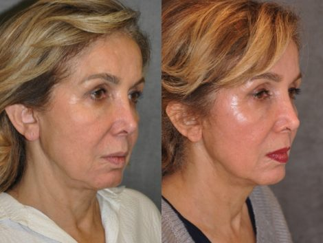 Profound Skin Tightening - Right Side