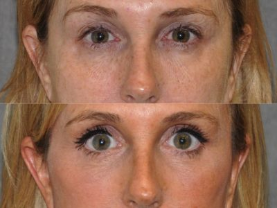 AuraLyft with Eye Rejuvenation - Front