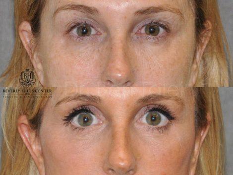 AuraLyft with Eye Rejuvenation - Front