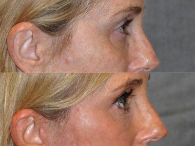 AuraLyft with Eye Rejuvenation - Right Side