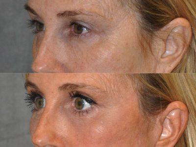 AuraLyft with Eye Rejuvenation - Left Side