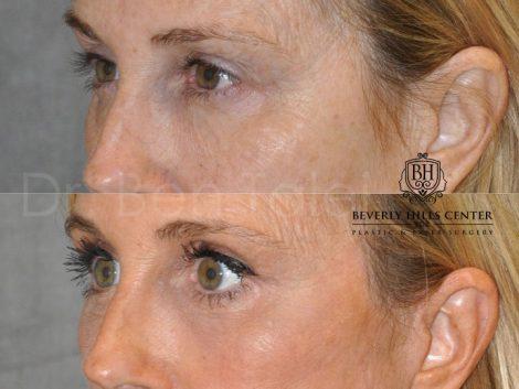 AuraLyft with Eye Rejuvenation - Left Side