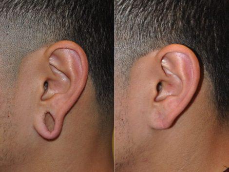 Gauge Ear Closure
