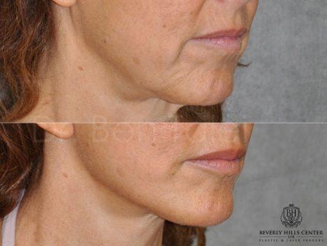 Lip Augmentation - Right Side