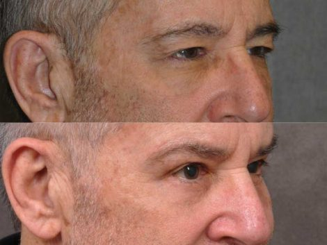 Brow & Eyelid Ptosis Repair with Lower Eyelid Rejuvenation - Right Side