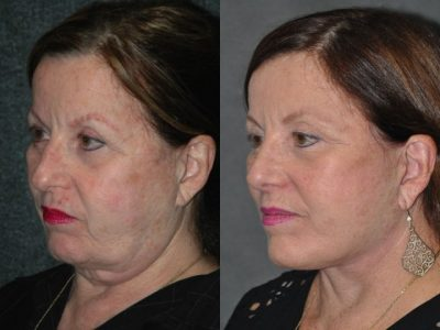 Revision Face and Neck Lift - Left Side